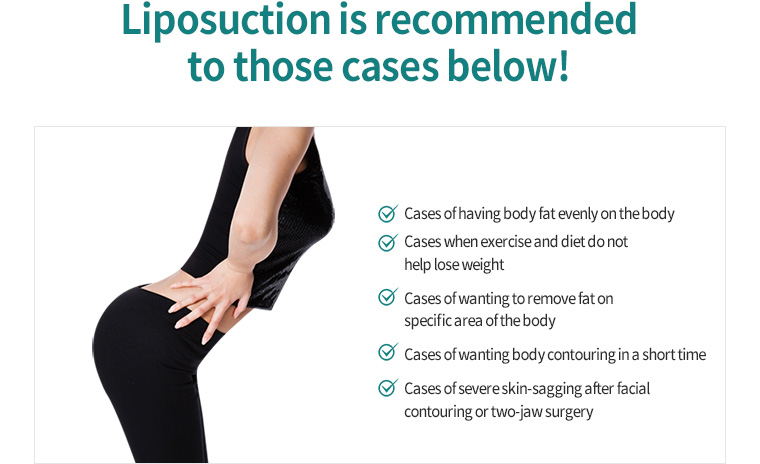 Liposuction is recommended to those cases below!