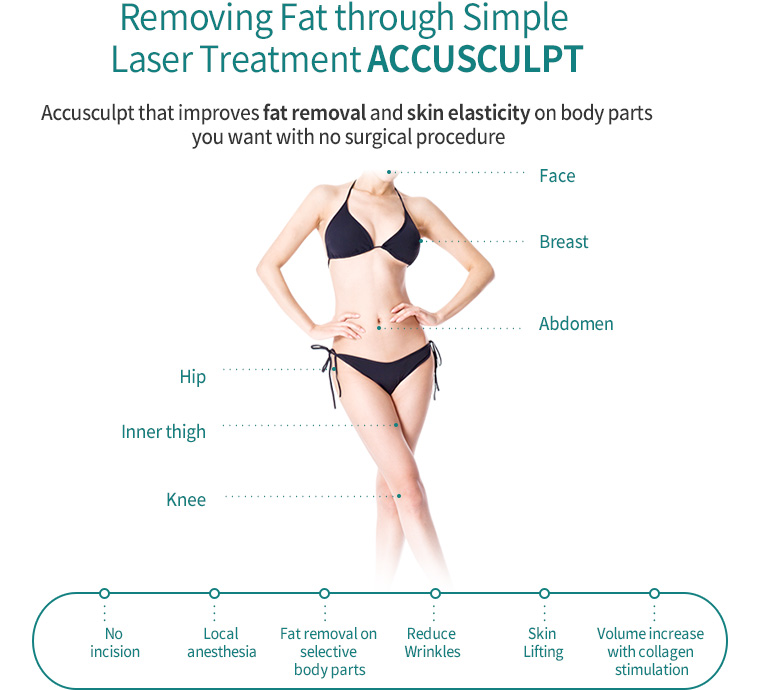 Removing Fat through Simple Laser Treatment Accusculpt