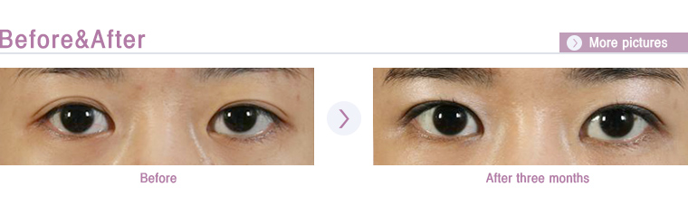 how to fix ptosis without surgery