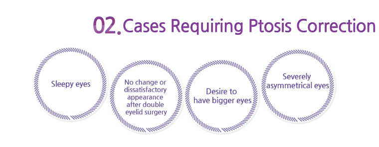 cases requiring ptosis correction
