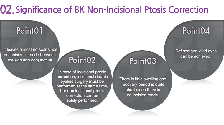 Significance of BK Non-Incisional Ptosis Correction
